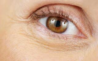 Как убрать морщины вокруг глаз в домашних условиях после 45 лет