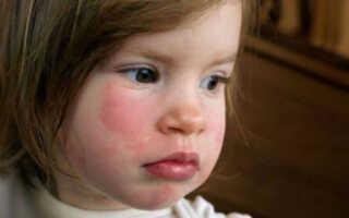 У ребенка аллергия на холод на лице, что делать?