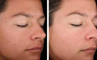 Лазерная шлифовка лица, отзывы, фото до и после