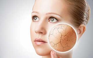 Что делать если шелушится кожа на лице
