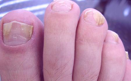 Грибок ногтей на ногах, чем лечить, уксусом?