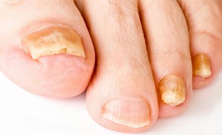 Как вылечить грибок на ногтях ног быстро