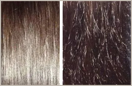 Секутся волосы по всей длине, что делать