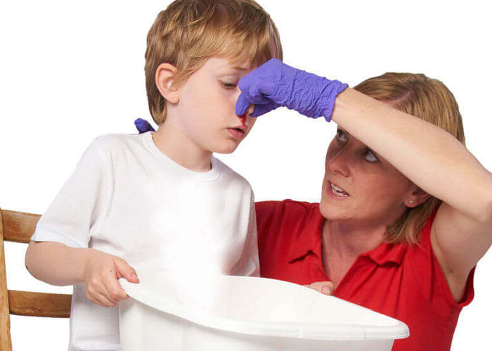 У ребёнка кровь из носа, причины