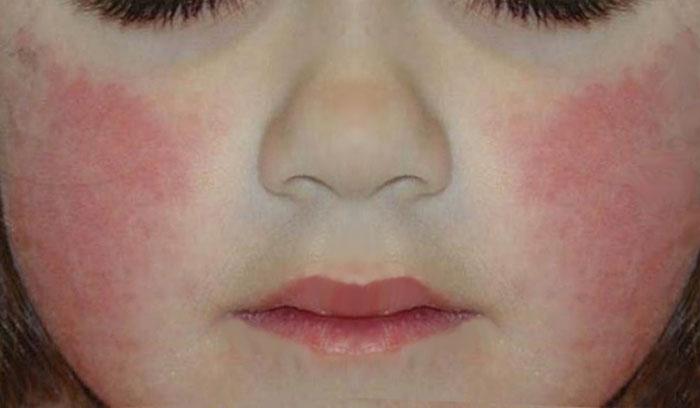 У ребёнка красные шероховатые щёчки, причина, лечение