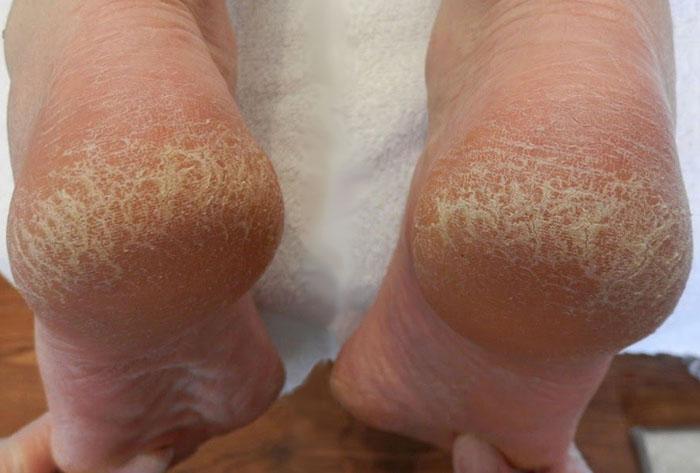 Маска для ног с аспирином, чтобы снять огрубевшую кожу