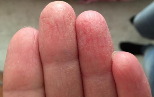 На руках трескается кожа на пальцах