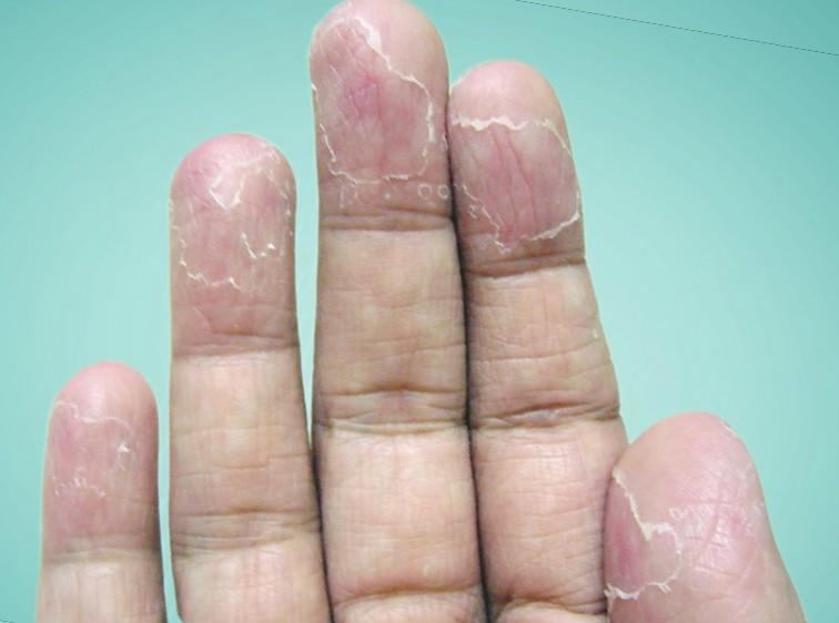 Трескаются подушечки пальцев на руках, причины и лечение