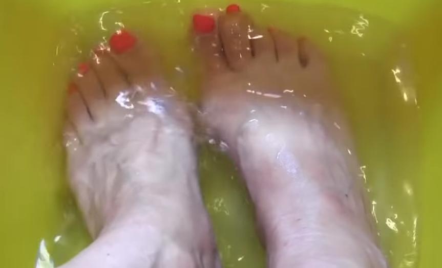 Грибок ногтей на ногах чем лечить уксусом