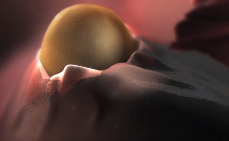 Как лечить кисту яичника без операции, рекомендации